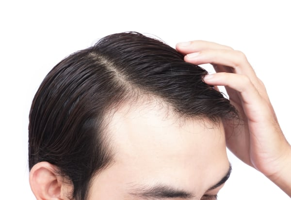 Young man serious hair loss problem for health care medical and