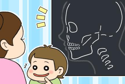 子どもの矯正歯科治療を小さい頃から始めるメリットとは?