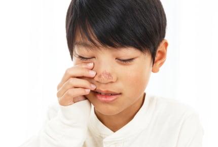子どもに2度もヤケドさせた義父を許せる?約96%のママたちのコメントは……