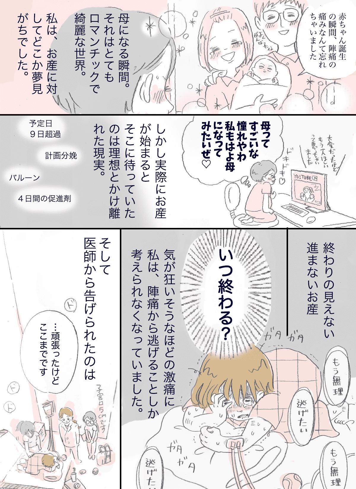帝王切開1