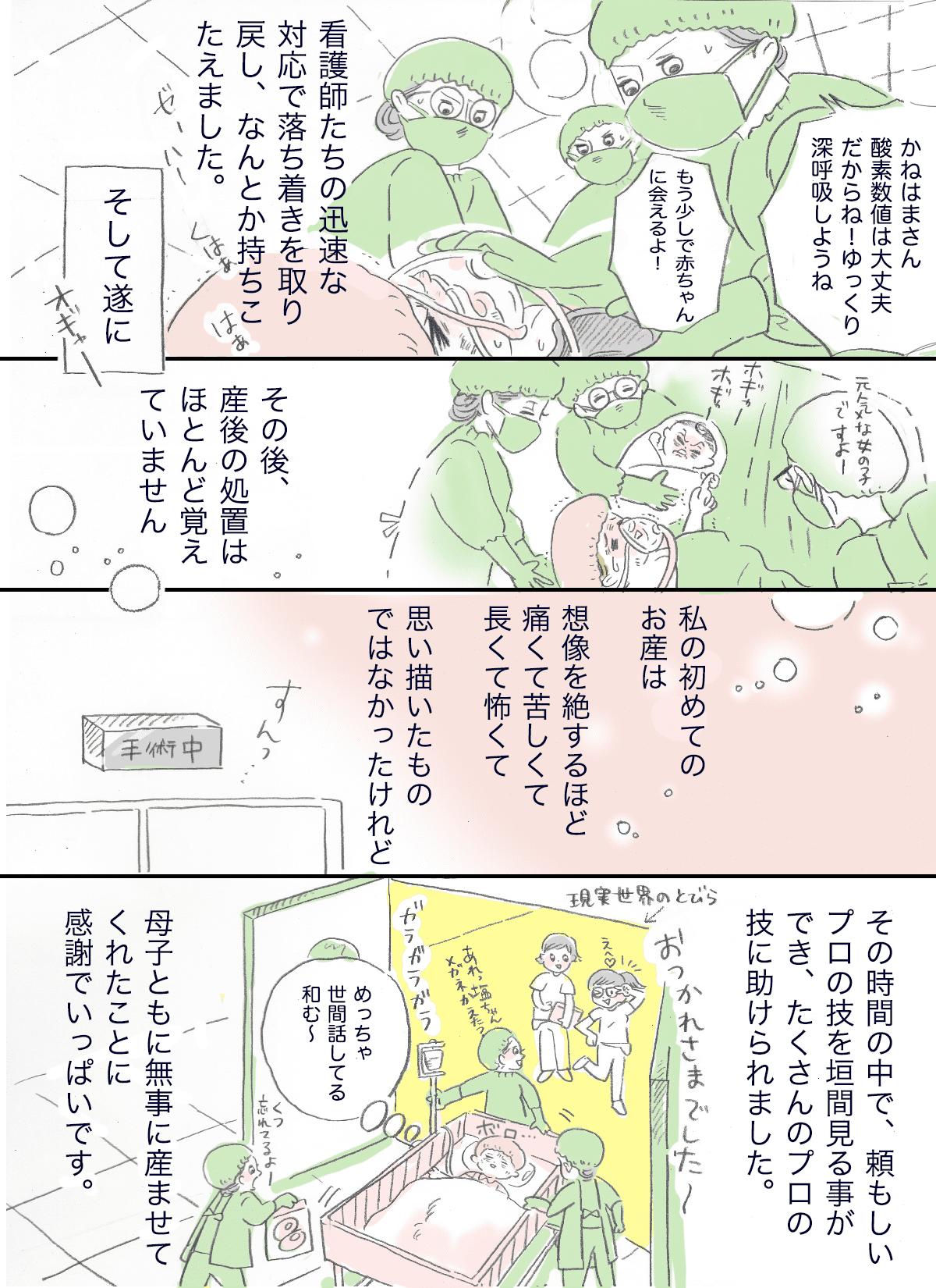 帝王切開05