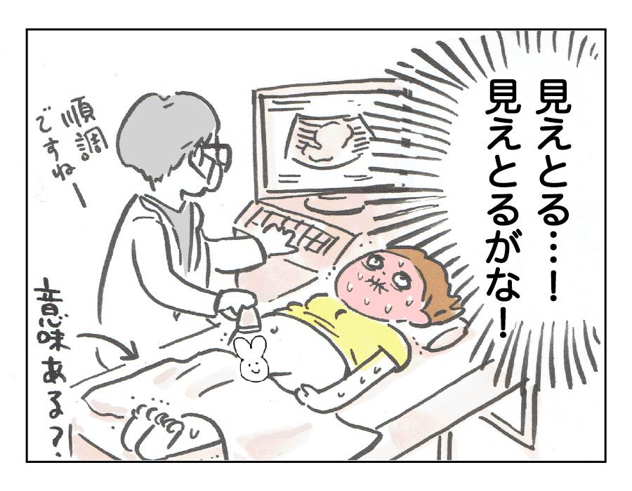 経腹エコー4