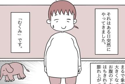 【双子出産ダイアリー10】双子妊娠後期は、むくみとの戦い。むくみの改善につながった方法とは?