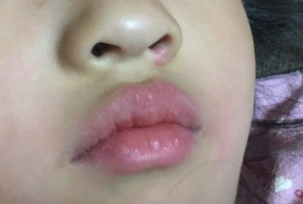 【体験レポート】いつも鼻血が出て心配! 小児科オンラインで相談してみました